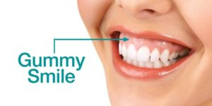 десневая улыбка gummy smile