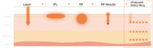льтразвуковой смас лифтинг сравнение