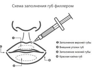 сделать губы Киев