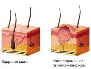 структура бородавки