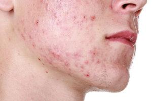 rash face